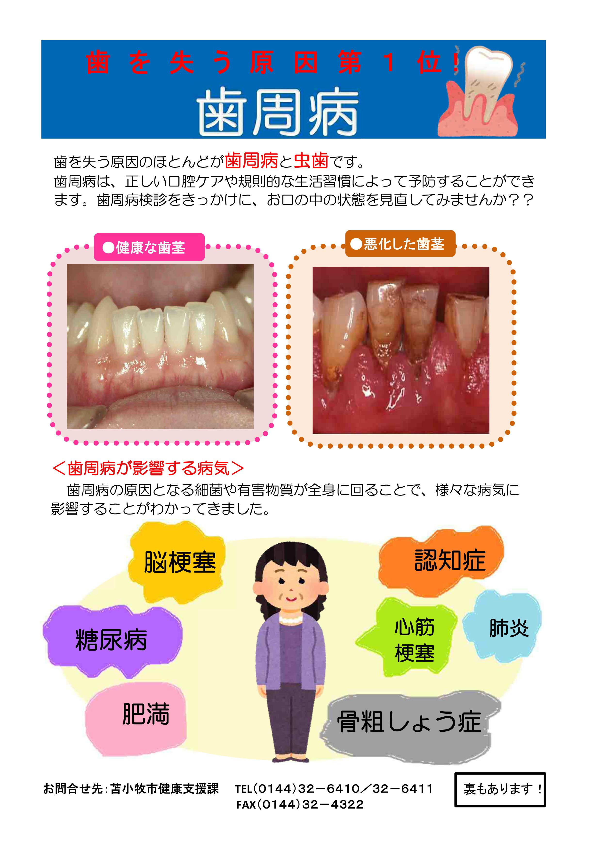 4 歯周病検診リーフレット-1